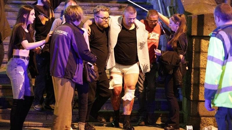 بريطانيا: قتلى وجرحى في انفجار بقاعة للحفلات بمانشستر