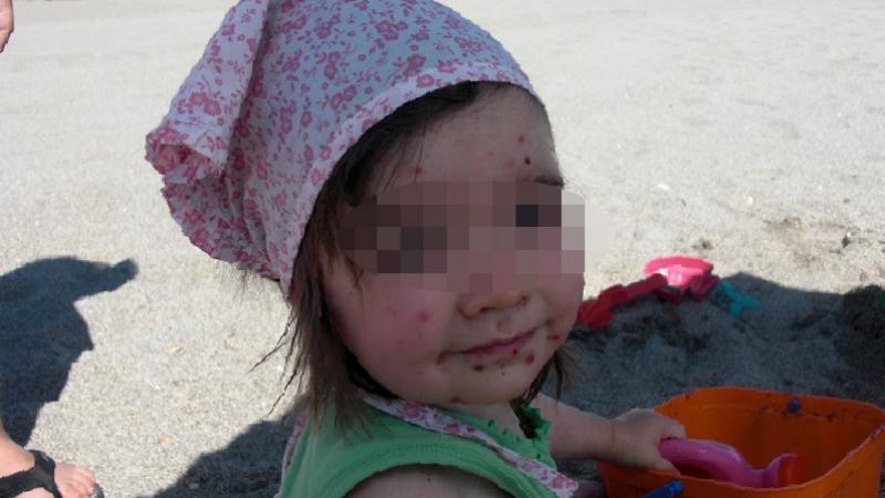 تعرض أطفال مصطافين إلى إصابات جلدية بسوسة:الفوراتي يكشف نتائج التحاليل