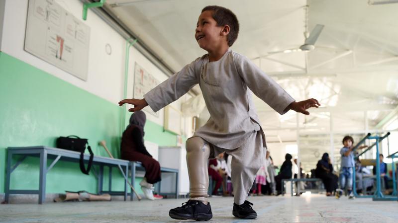 رقصة الفرح.. ولو بساق إصطناعية