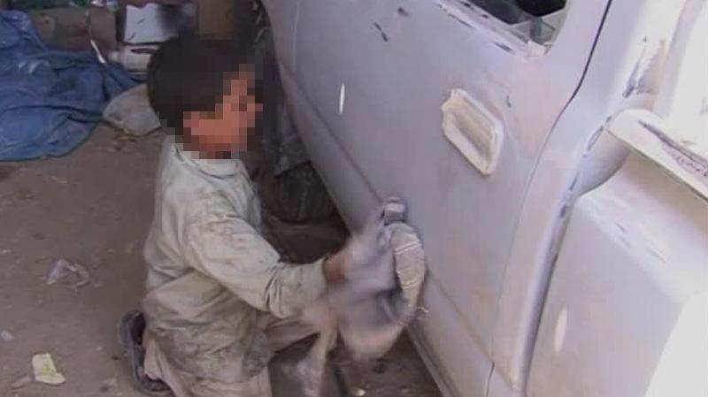 القيروان: إصابة طفل يعمل في ورشة تصليح سيارات بحروق بليغة