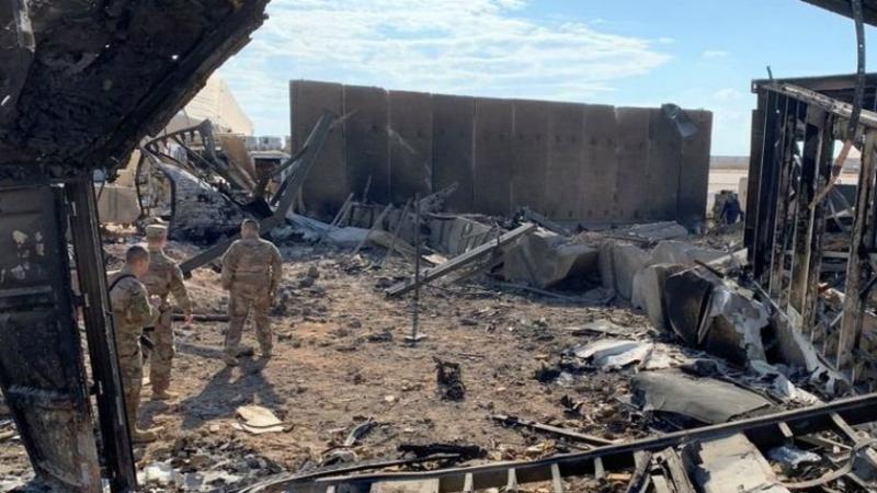 في القصف الإيراني: البنتاغون يعترف بإصابةجنودبارتجاجدماغيّ