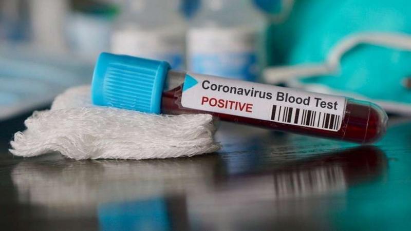 إصابتان جديدتان بفيروس كورونا