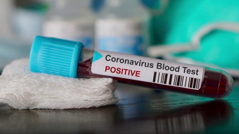 فيروس كورونا: ارتفاع عدد المصابين إلى 54 حالة
