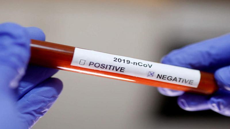 تسجيل 5 حالات شفاء من فيروس كورونا