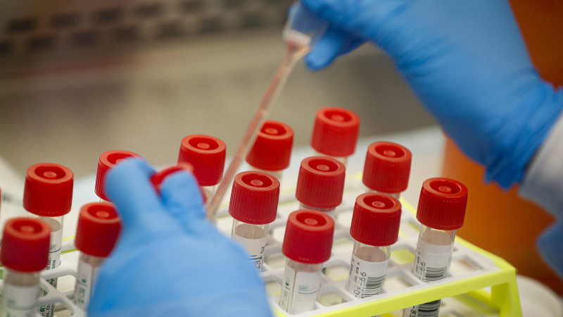سيدي بوزيد: إصابتان جديدتان بفيروس كورونا