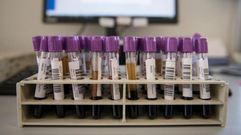معهد باستور: منصّة للتسجيل لإختبار تشخيص كورونا