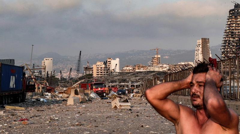 بيروت المتفجّرة.. الصور تنزف