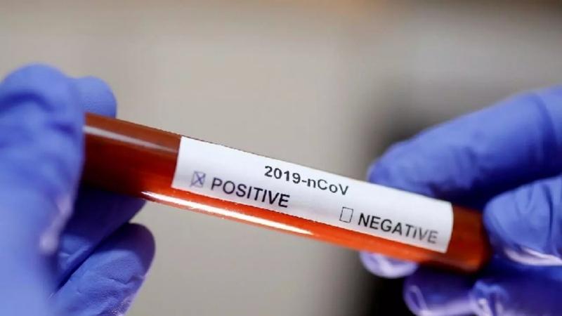 الكاف: تسجيل إصابة جديدة وافدة بفيروس كورونا