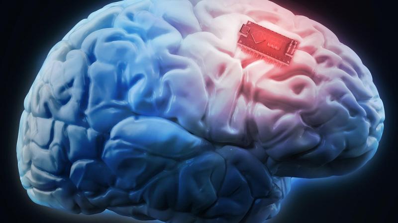 زرع شريحة في دماغ إنسان... هل يتحقق الخيال؟
