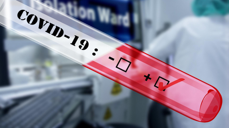 44 إصابة جديدة بكوفيد-19 في نابل
