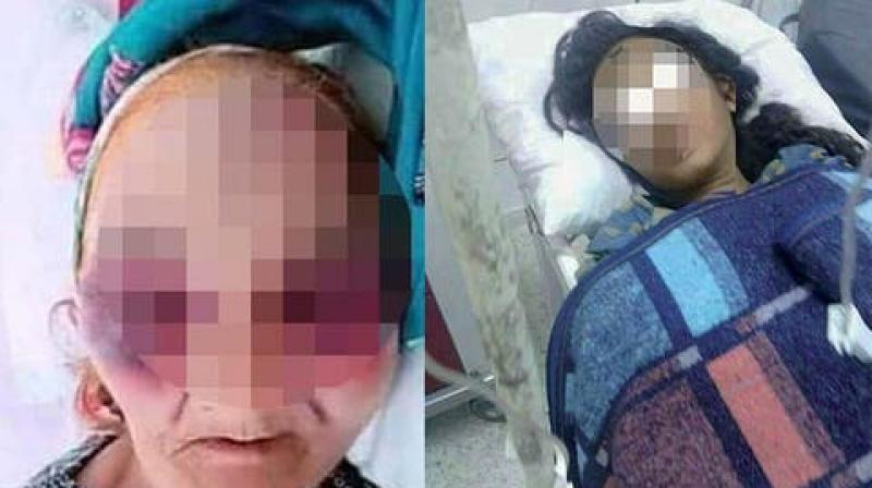 الحكم بعشر سنوات سجنا على ''فتاة قبلاط''