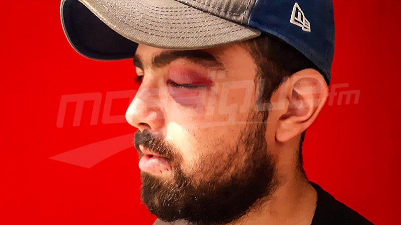 Agression lors des festivités d'Ennahdha : la victime témoigne