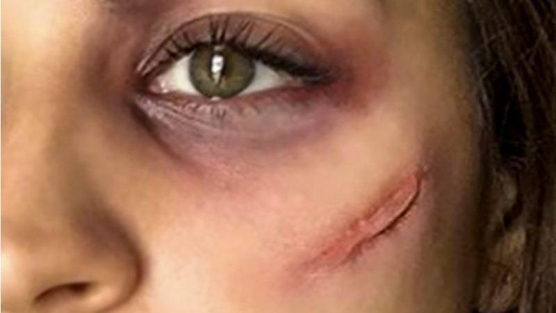 Tunis : 12 ans de prison pour braquage et balafre