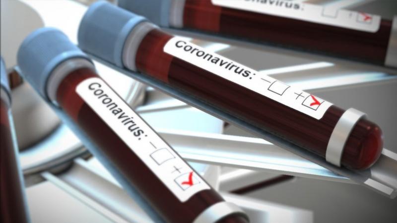 Coronavirus : 1784 nouvelles contaminations en Tunisie