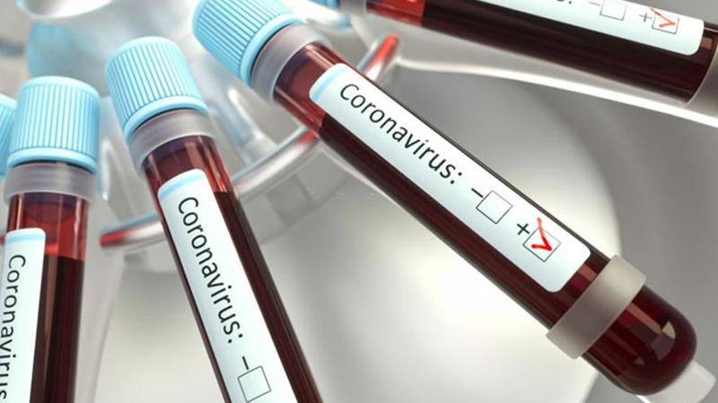 Coronavirus : 747 nouveaux cas en 48H en Tunisie