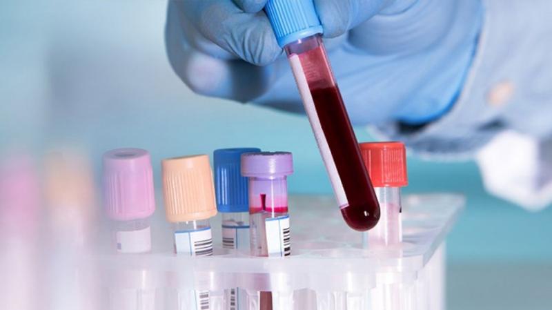 Coronavirus: Aucun cas à Sousse