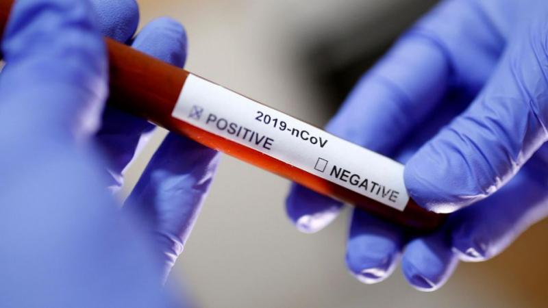 Coronavirus: Près de 500 décès en 24 heures
