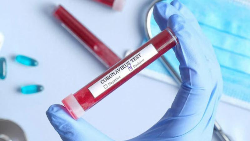 Coronavirus : Trois nouveaux cas importés