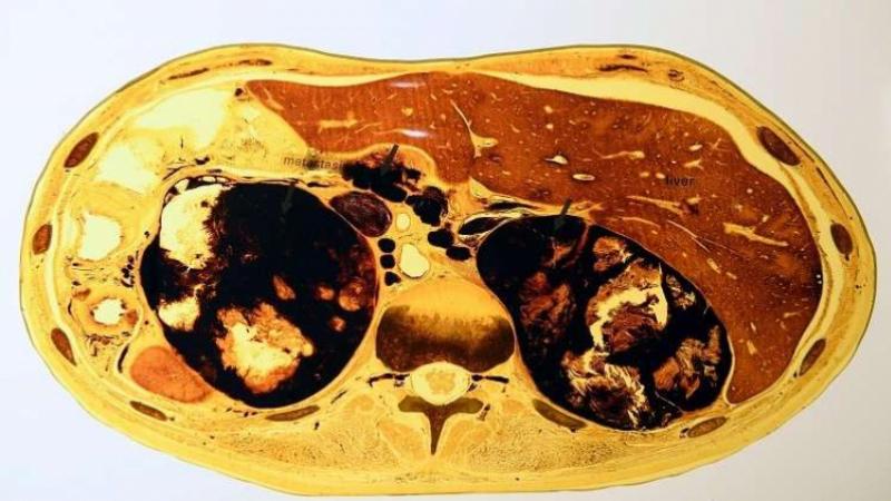Corps humain : découverte d'un nouvel organe
