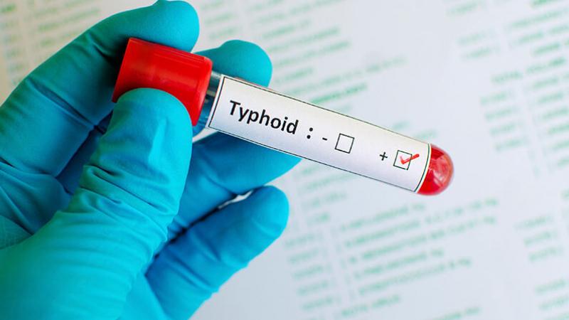 Legmi et eau polluée derrière la propagation de la fièvre typhoïde