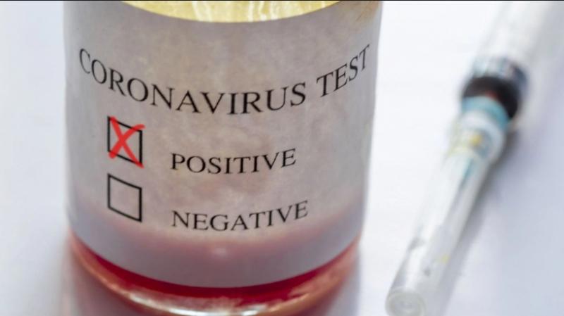 Manouba : Hausse du nombre de cas positifs au Coronavirus