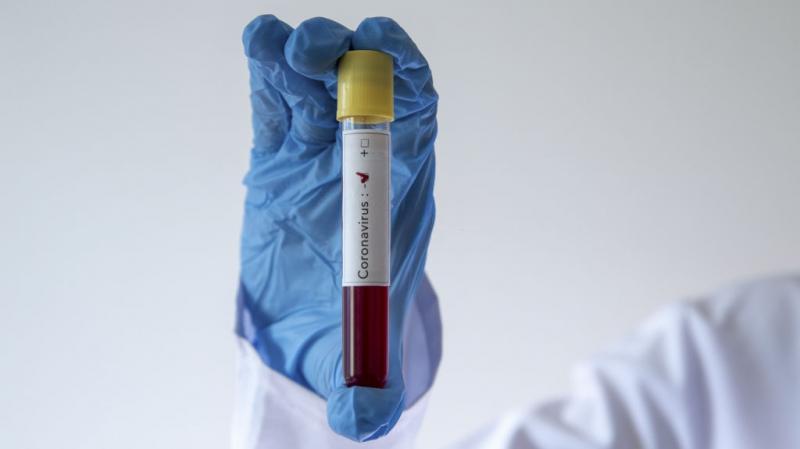 Sbeitla : Un enseignant testé positif au coronavirus
