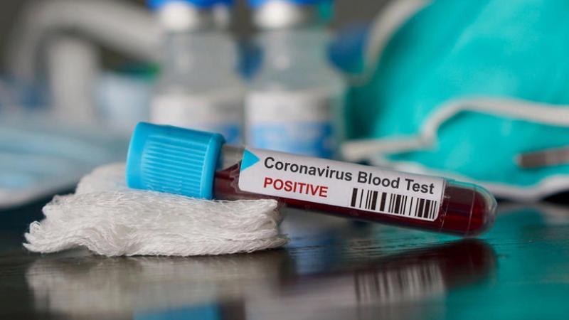 Sfax: Nouveau cas de contamination au Coronavirus