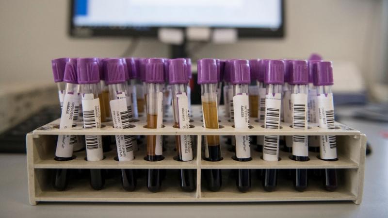 Shiri : Résultats rassurants en matière de lutte contre le coronavirus