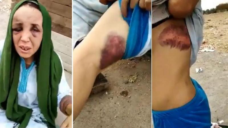 Vidéo: Le témoignage d'une Marocaine battue par son mari
