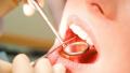 أطباء الأسنان يحملون الشارة الحمراء